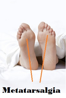 Bottom Of Foot Pain Conditions