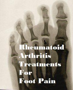 Rheumatoid Arthritis Treatment For Foot Pain