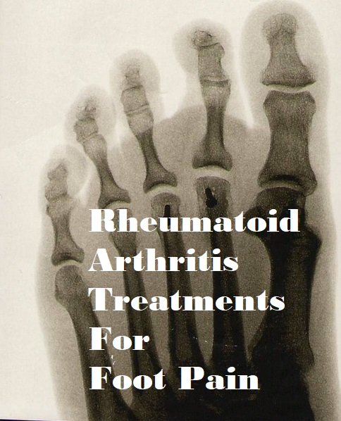 Rheumatoid Arthritis Treatment For Foot Pain
