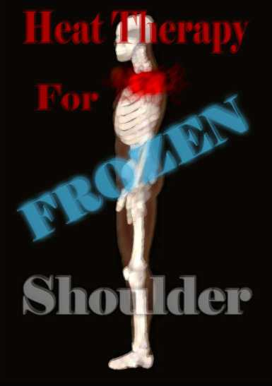 Heat Treatment For Frozen Shoulder